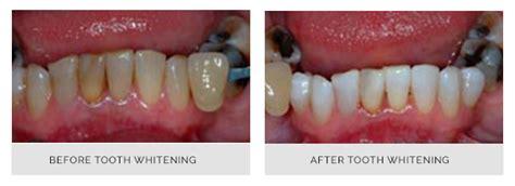 teeth whitening ilkley dentist leeds white teeth