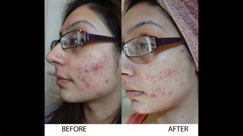 Serum Tea Tree By Kefir Cipan wedding vlog get rid of scaring acne tumeric viche skin