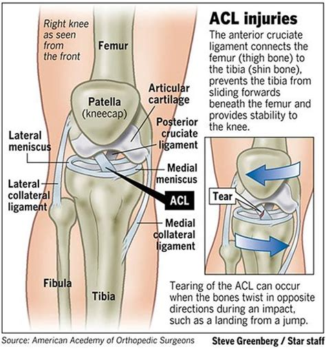 acl surgery cost best 25 acl tear ideas on