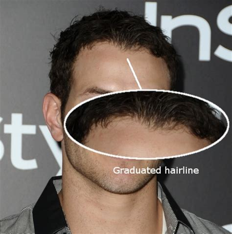 different types of receding hairlines types of hair lines types of receding hairlines an image of man with various types all