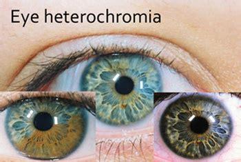 eye pattern meaning gb lifesciences