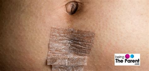 section scar infection causes diagnosis and treatment