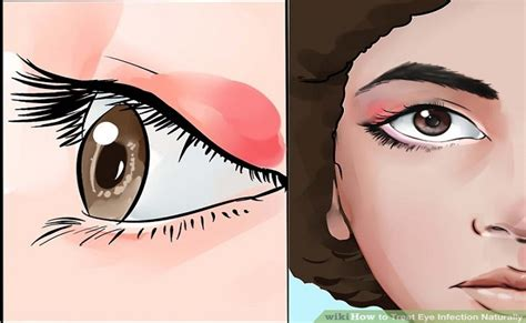 how to treat eye infection at home how to cure an eye infection in just 24 hours with this home remedy