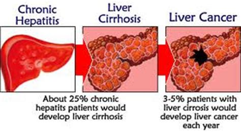 liver disease expectancy cirrhosis of the liver expectancy
