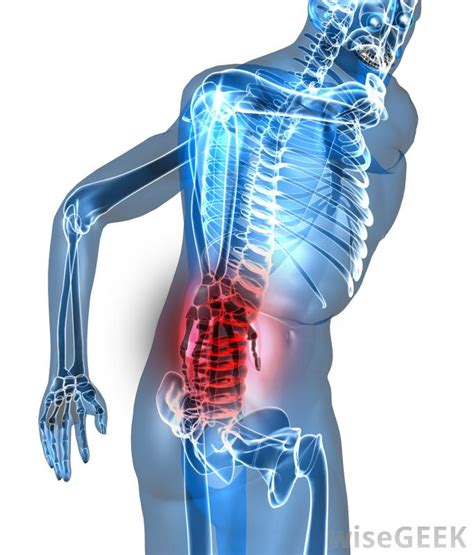 pain body what are the most common causes of burning lower back pain