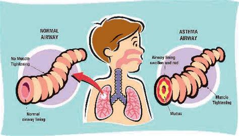 Obat Herbal Sesak Nafas Karena Maag obat asma obat tradisional jelly gamat gold g