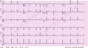 how to get out of afib at home atrial fibrillation 3 learntheheart