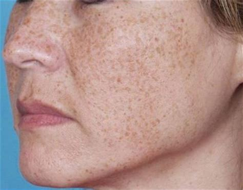 spot causes brown spots on causes treatment prevention pictures diseases pictures