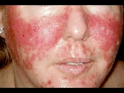 Hives And Detox by Vegan Diet Detox Rash Help Q A