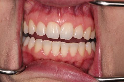 zara   invisalign braces teeth gaps