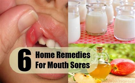 6 sores home remedies treatments and cures