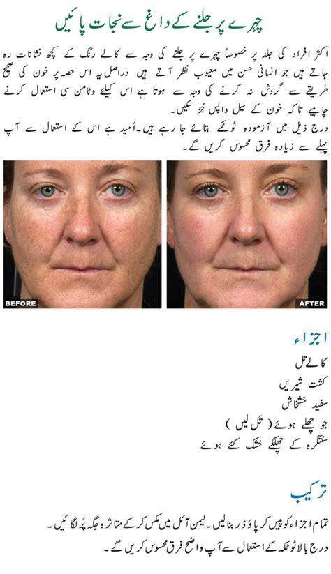 male pattern baldness meaning in urdu dr khurram urdu rachael edwards