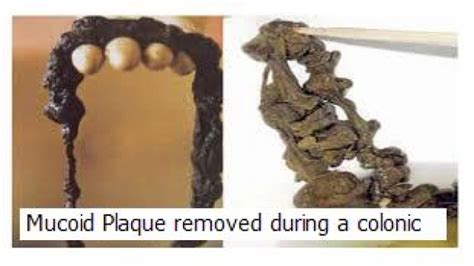 Detox Colonse For Mucoid Plaque by Benefits Of Our Cleanse Retreat And Colonic Irrigation