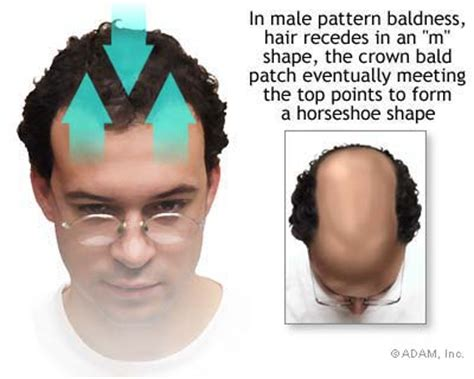 male pattern hair loss natural remedies herbal treatments for hair loss in men by dr patrick