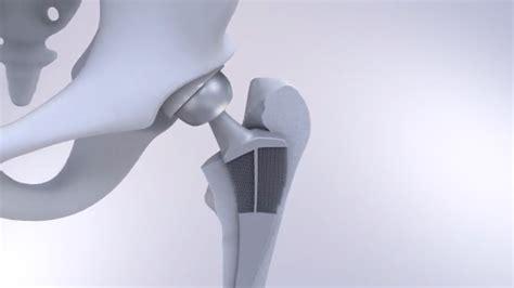 via tu tu delft s 3d printed metamaterial hip puts a in