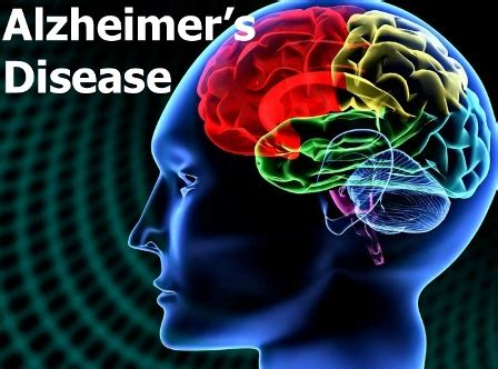 Diagnosis of Alzheimer's Disease and Dementia   CareGivers