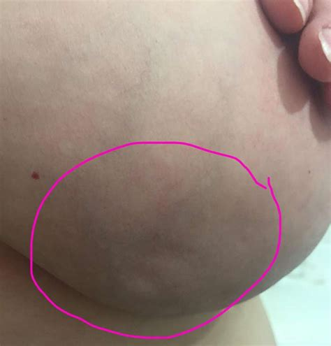 lump on s chest true story breast cancer it s not just lumps what you need to central