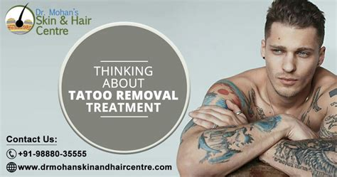 tattoo removal in india faq on removal treatment in india