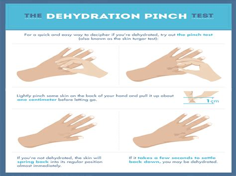 dehydration test signs you may be dehydrated lifebru
