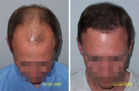 cost of hair restoration in thailand thailand hair transplant center chiang mai thailand