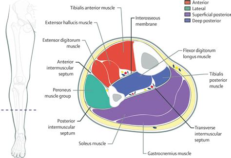thigh cross sectional anatomy diagnosis and treatment of acute extremity compartment