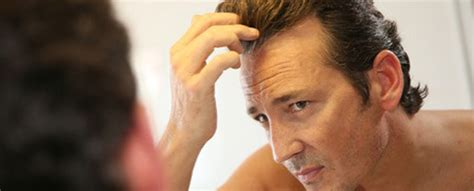 how to style hair to hide hair transplant scar can rogaine minoxidil make hair loss worse limmer htc