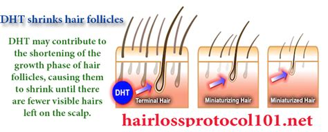 dht dihydrotestosterone what is dht s role in baldness what is dht dihydrotestosterone hair loss protocol 101