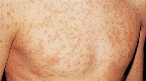 identifying skin rashes pictures