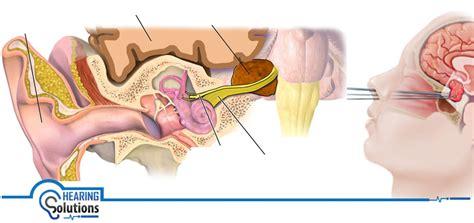 schwannoma vestibular vestibular schwannoma tumor is cancerous or not