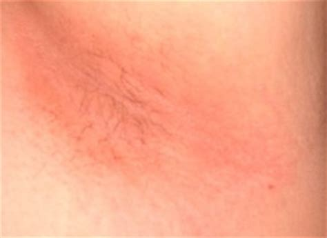 underarm rash causes underarm itching armpits rash after shaving at night