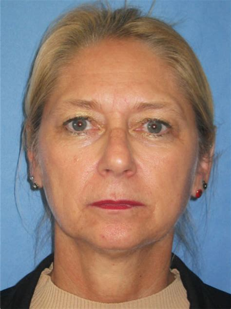 55year old woman face endoscopic brow lift upper and lower eyelid lifts and a