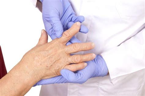 reuma test rheumatoid arthritis diagnosis