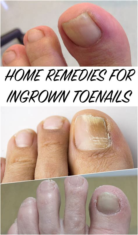 home remedies for ingrown toenails timeless tricks