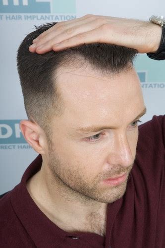 before and after widows peak hairline redesign receding treatment sydney melbourne