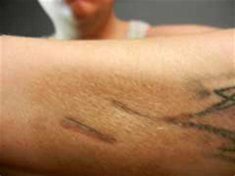 tattoo removal at home tattoo removal at home review is it a safe procedure