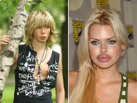 Whats Wrong With Hollyscoop by Remember Say No To Plastic Cosmetic Surgeries