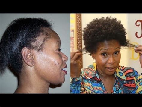 how to hide bald edges with pressed hair how i repaired my thinning edges 2 products video black