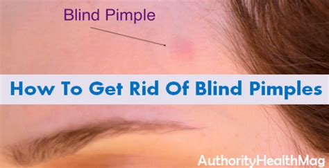 how to get rid of blackheads whiteheads zits acne fast skin and beauty care authority health magazine