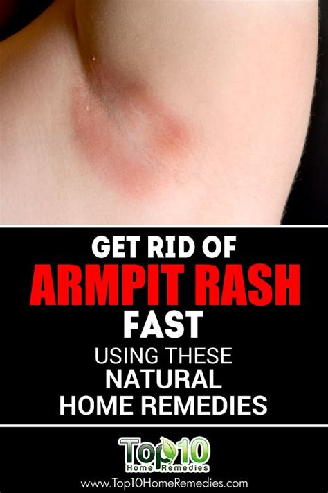 Armpit Detox Rash by 25 Best Ideas About Armpit Rash On Baking