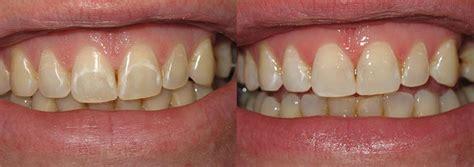 dental restoration seattle wa   smile gallery