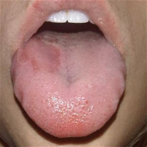 swollen red bumps on side of tounge blanktemplate2