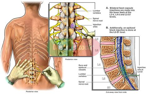 back pain after spinal block c section lumbar facet and epidural block injections doctor stock