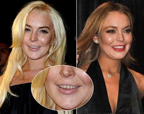 Is Lindsay Lohan Cleaning Up Act by Lindsay Lohan Photos Teeth Makeovers Ny