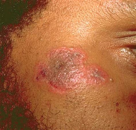 discoid lupus erythematosus pictures