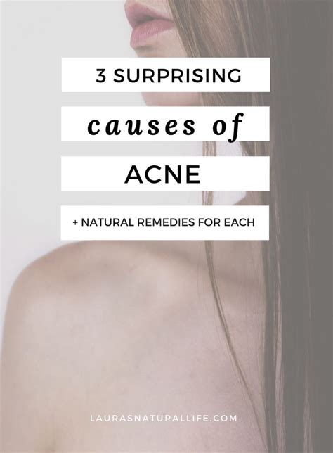 Can Detox Cause Pimples On by 969 Best Spot Acne Prone Skin Images On
