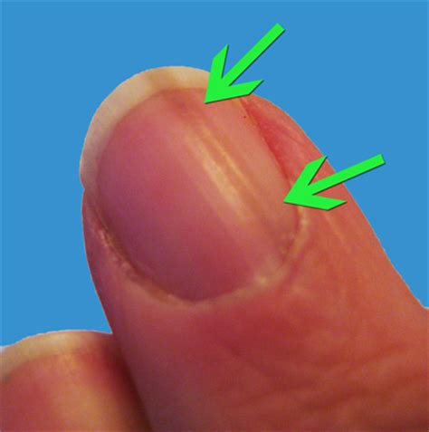 dark line on fingernail line on nails vitamin deficiency awesome nail