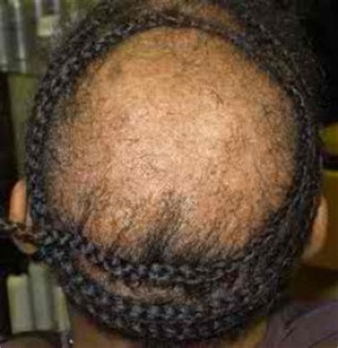 Sewn In Tracks To Cover Bald Spots On Side Of Hair For Black Women | net weaves for hair loss