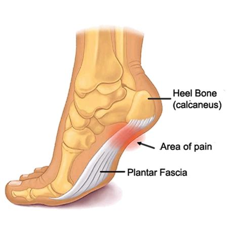 Planter Fasiitis by Plantar Fasciitis Taping For Superior Arch Support