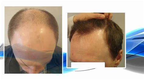Hair Transplant Types by Fue Hair Transplant On Norwood 6 Type Patient Part 1