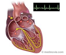 afib ablation side effects my fight with lymphoma a survivor atrial flutter and